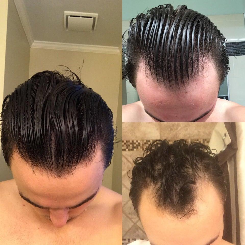 بخاخ الشعر